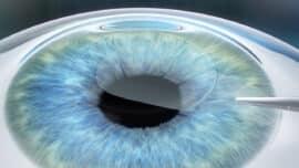 eye during smile lasik procedure