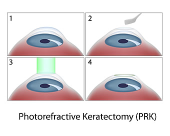 Photorefractive Keratectomy